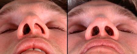 Cептопластика для улучшения дыхания