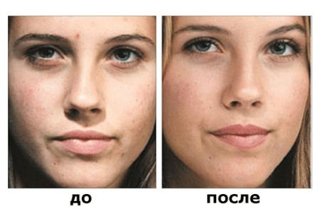 До и после процедуры микродермабразии