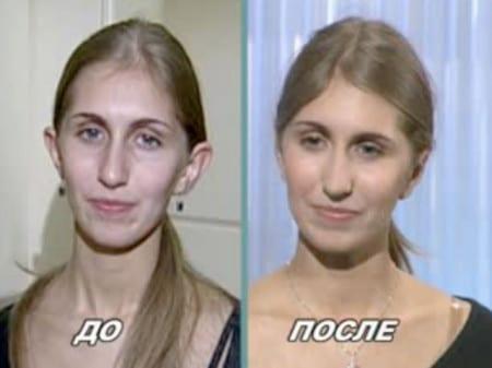До и после операции по устранению лопоухости