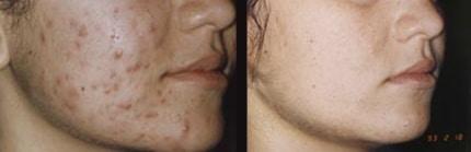 Фото до и после пилинга Джесснера