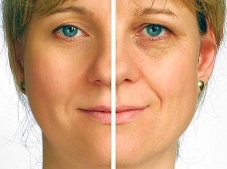До и после процедуры rf лифтинг лица