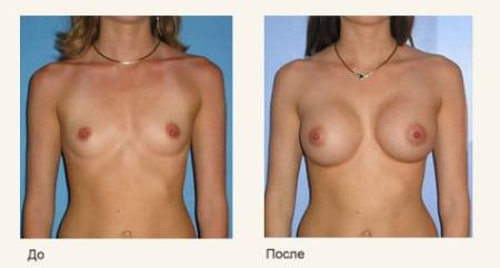 Биогель увеличение груди отзывы