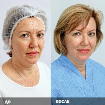До и после процедуры лазерного омоложения лица
