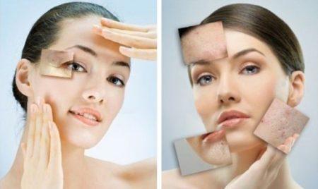 Очищение кожи с помощью лазерной шлифовки