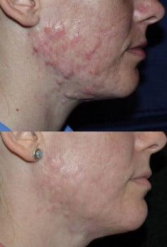Удаление с кожи лица рубцов