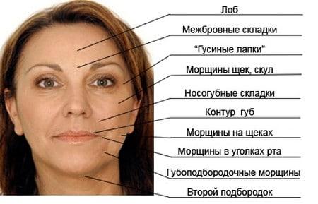 С помощью ботокса и диспотра можно разгладить практически все участки лица