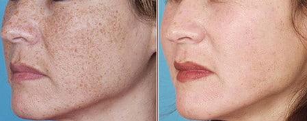 Фракционная мезотерапия позволяет хорошо очистить и разгладить кожу