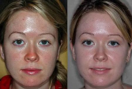 После нескольких процедур лицо заметно свежеет