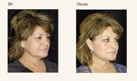 Изменения кожи лица и зоны декольте после применения крема с лифтинг эффектом