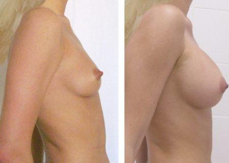 До и после липофилинга
