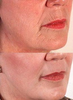 Мезотерапия позволяет омолодить кожу