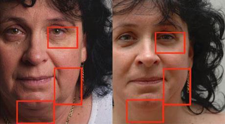 На снимке отмечены разглаженные участки кожи