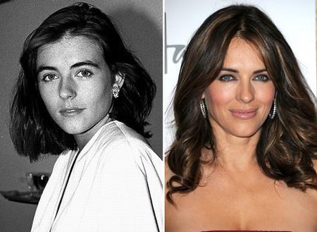 Процедуру увеличения губ прошли многие известные актеры