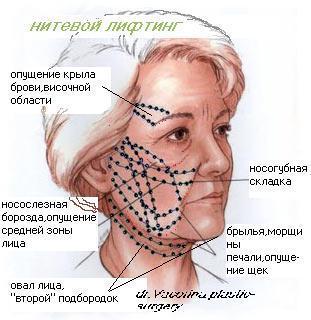 Подтяжка лица нитями относится к прогрессивным методам косметологии