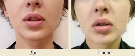 Изменение контура губ