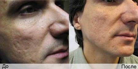 лечение шрамов и рубцов
