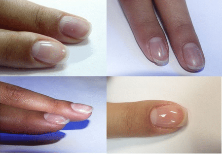 Покрытие биогелем создает защиту от механических повреждений, позволяя ногтям дышать.