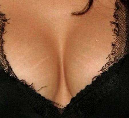 Растяжки на груди огорчают женщин