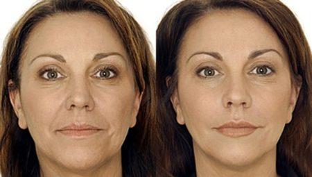 Биоревитализация улучшает цвет лица и разглаживает кожу