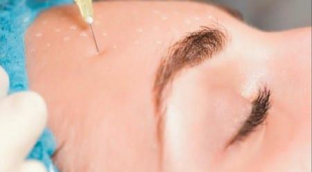 Омоложение кожи гелем для мезотерапии