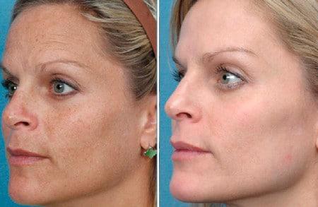 Ботокс позволяет хорошо подтянуть кожу лица