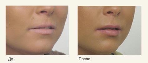 Изменение формы губ
