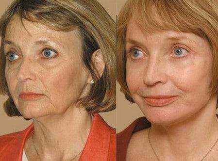 После химического пилинга кожа лица заметно молодеет