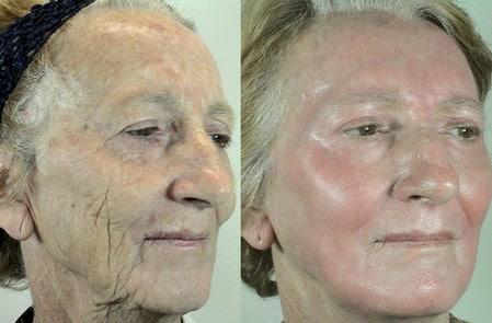 На фото хорошо заметны изменения кожи лица после химического пилинга