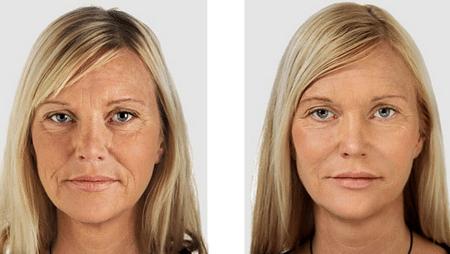 Лицо женщины ДО и ПОСЛЕ цикла из 20 сеансов массажа. Согласитесь, существенная разница?