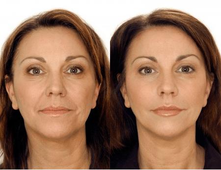 Так выглядит лицо женщины ДО и ПОСЛЕ курса классического массажа